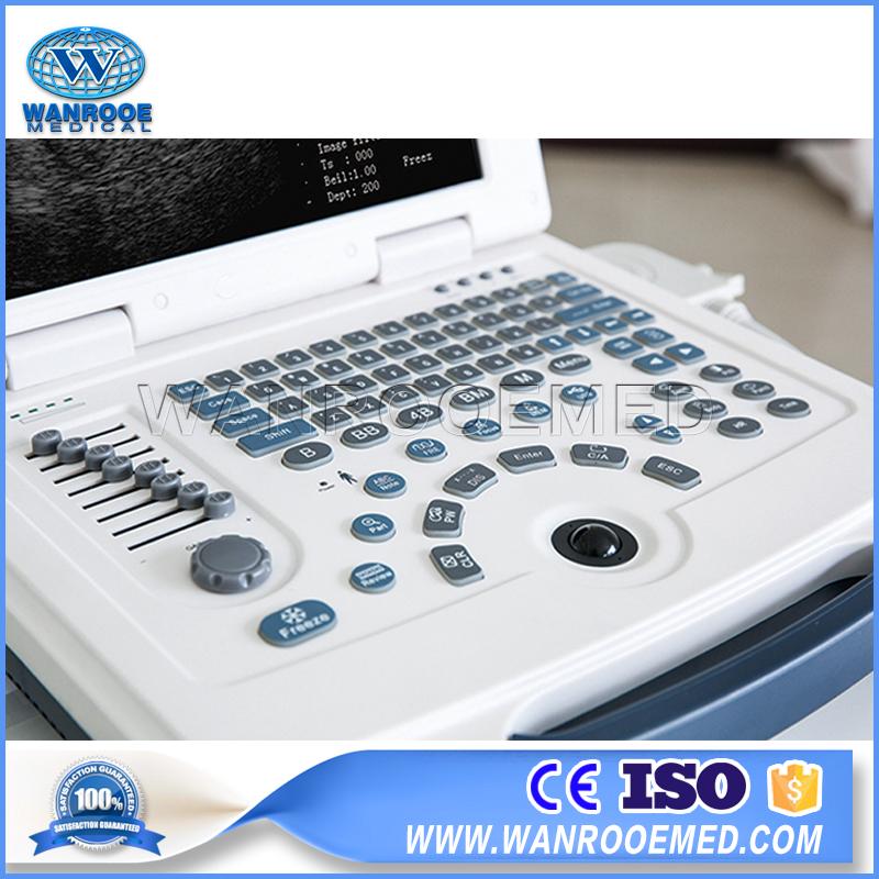 Laptop Ultrasound Scanner, Ultrasound Scanner, Diagnostic Ultrasound, 4D Ultrasound, Portable Ultrasound