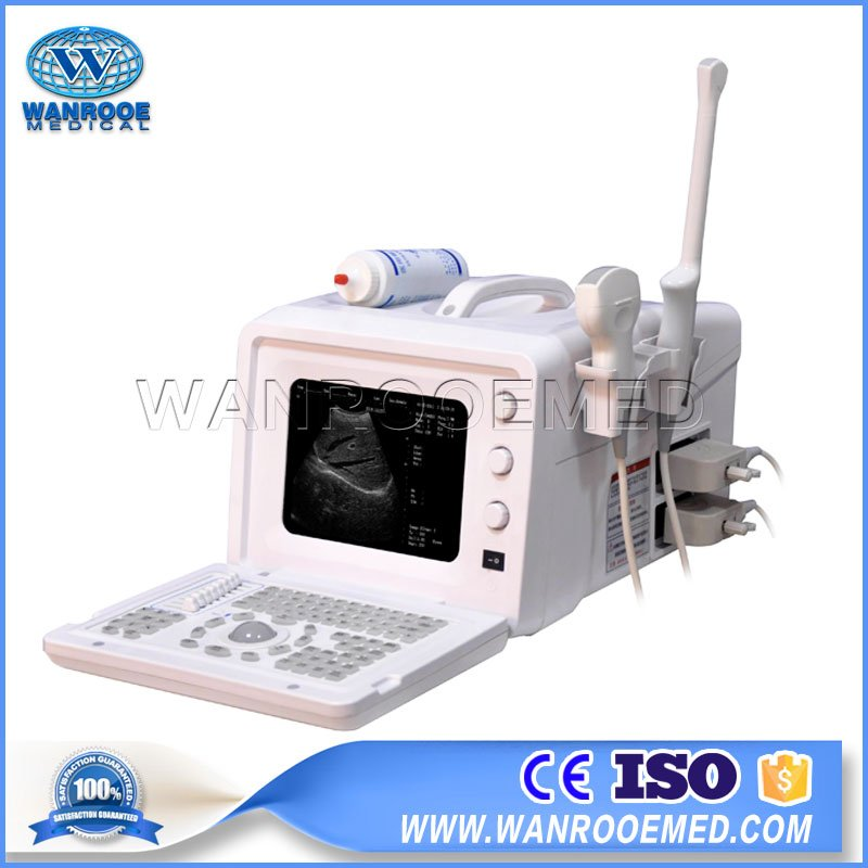 Color Doppler Ultrasound, Ultrasound Machine, 3D Ultrasound, Doppler Ultrasound, Doppler Ultrasound Machine