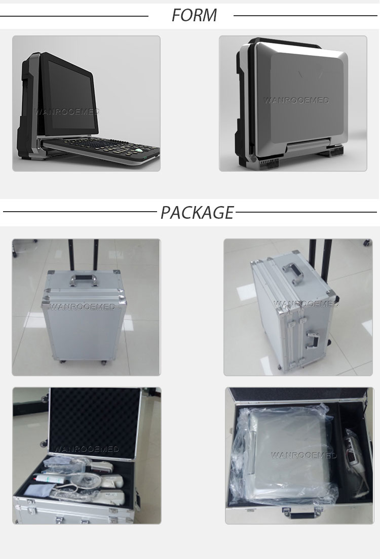 4D Ultrasound, Portable Ultrasound Machine, Color Ultrasound Machine, Color Ultrasound Scanner, Pregnancy Ultrasound Machine