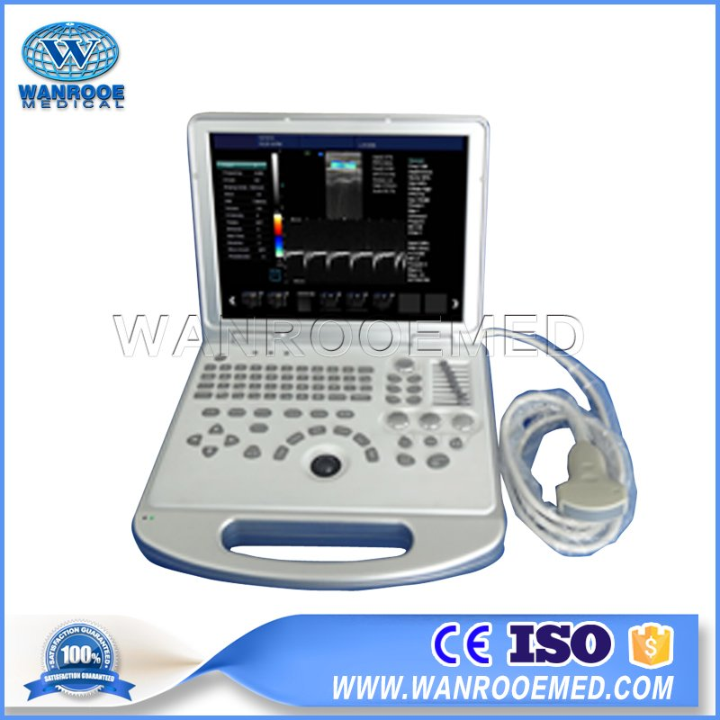 Ultrasound Scanner, Diagnostic Ultrasound, Color Ultrasound Machine, 4D Ultrasound, Portable Ultrasound Price