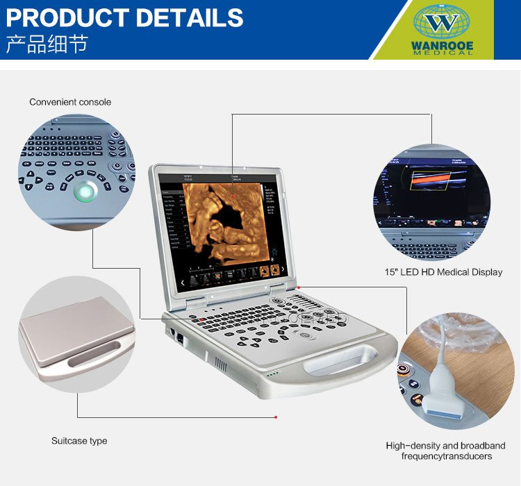Ultrasound Scanner, Diagnostic Ultrasound, Color Ultrasound Machine, 4D Ultrasound, Portable Ultrasound Price